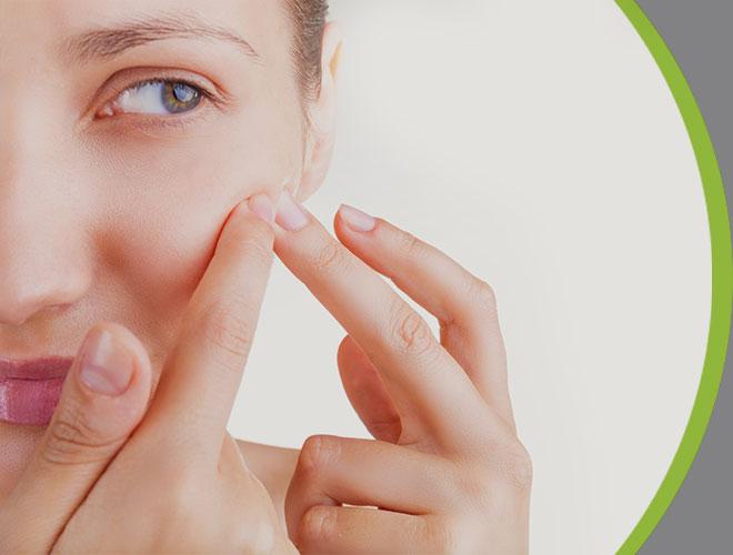 acne-interna