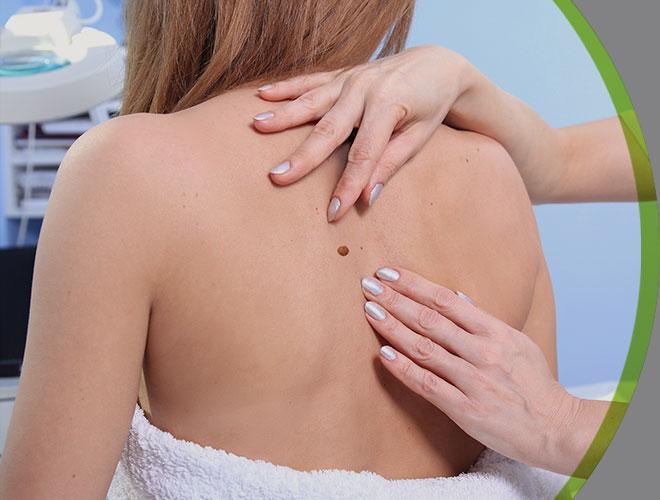 dermatologia-clinica-cancer-de-pele-interna