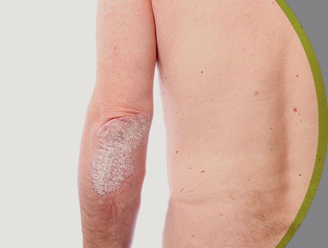 dermatologia-clinica-psoriase-interna