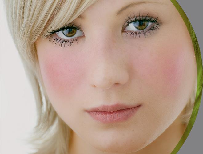 dermatologia-clinica-rosacea-interna