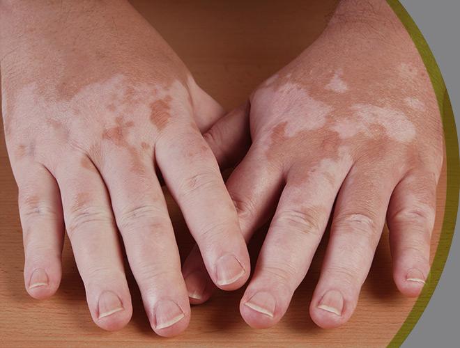 dermatologia-clinica-vitiligo-interna